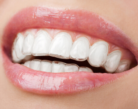 hove dental invisalign braces
