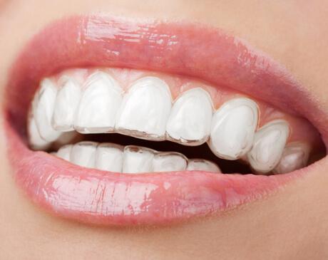 hove dental invisalign braces