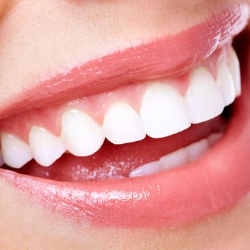 Straighten Smile