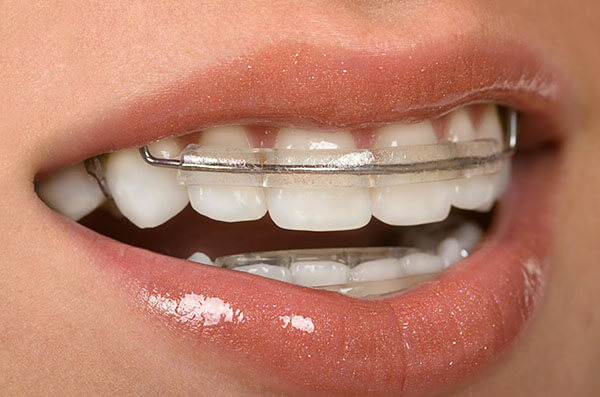 inman aligners smile mouth