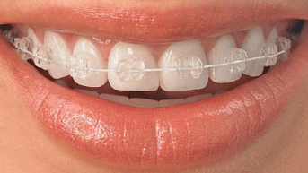 teeth straightening braces