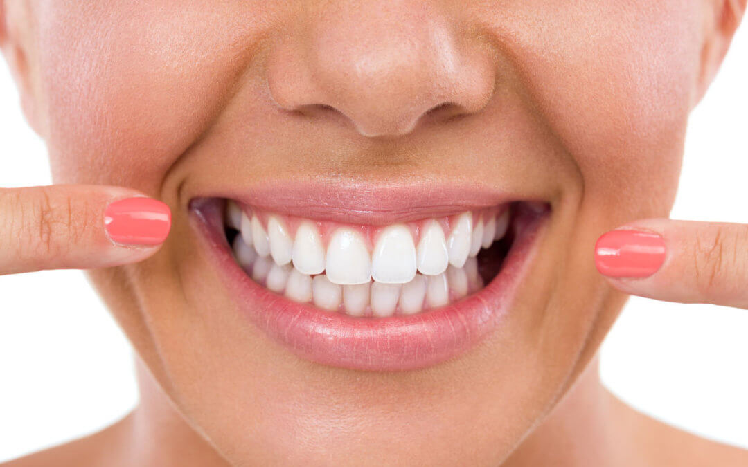 Teeth Whitening In Brighton And Hove Hove Dental Clinic
