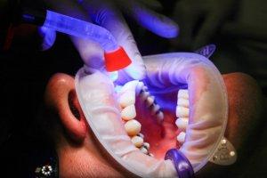 dental tech improving