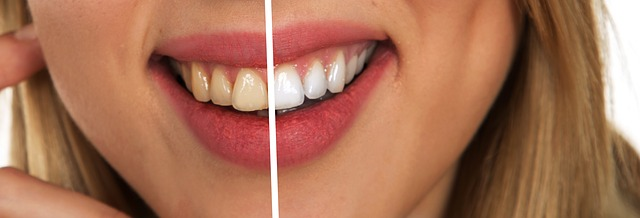 Exploring the Safety of Teeth Whitening Kits