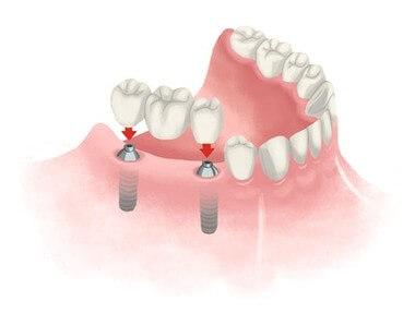 your dental bridge procedure