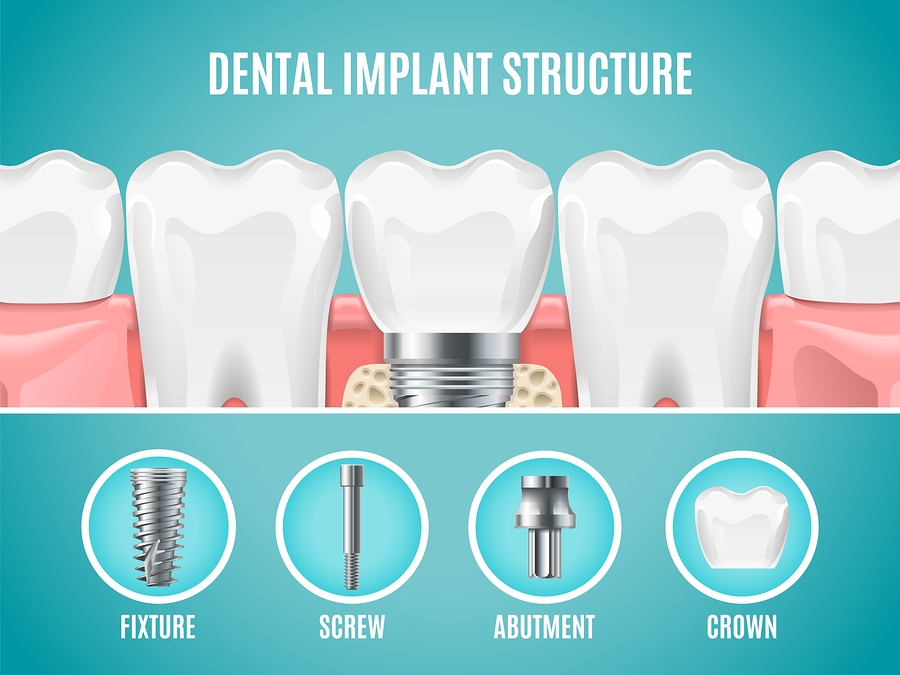 Tooth Implants: Everything You Need to Know| Certified Advice from Hove Dental Clinic