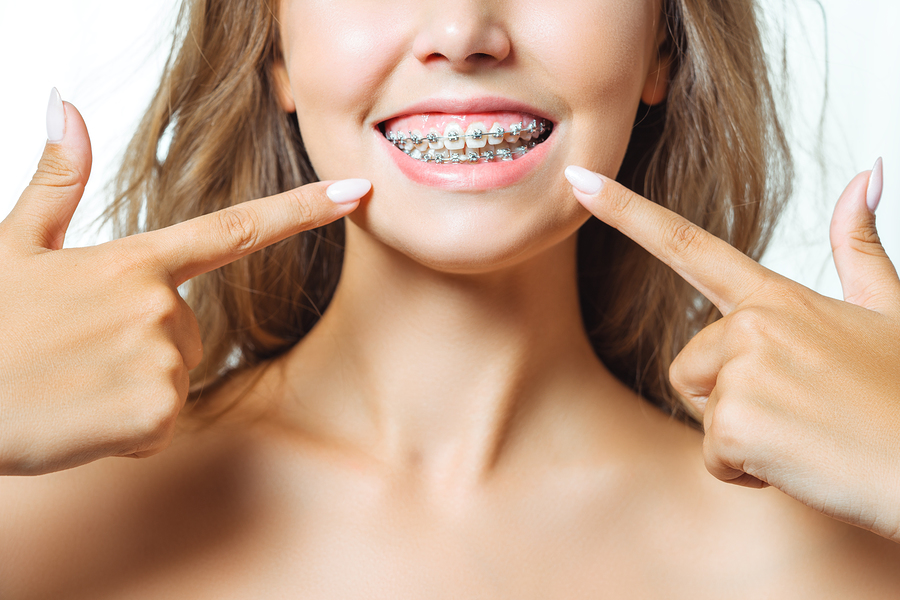 adult braces dentist
