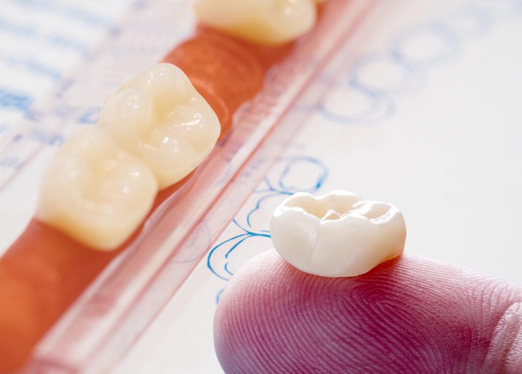 Single molar tooth crown