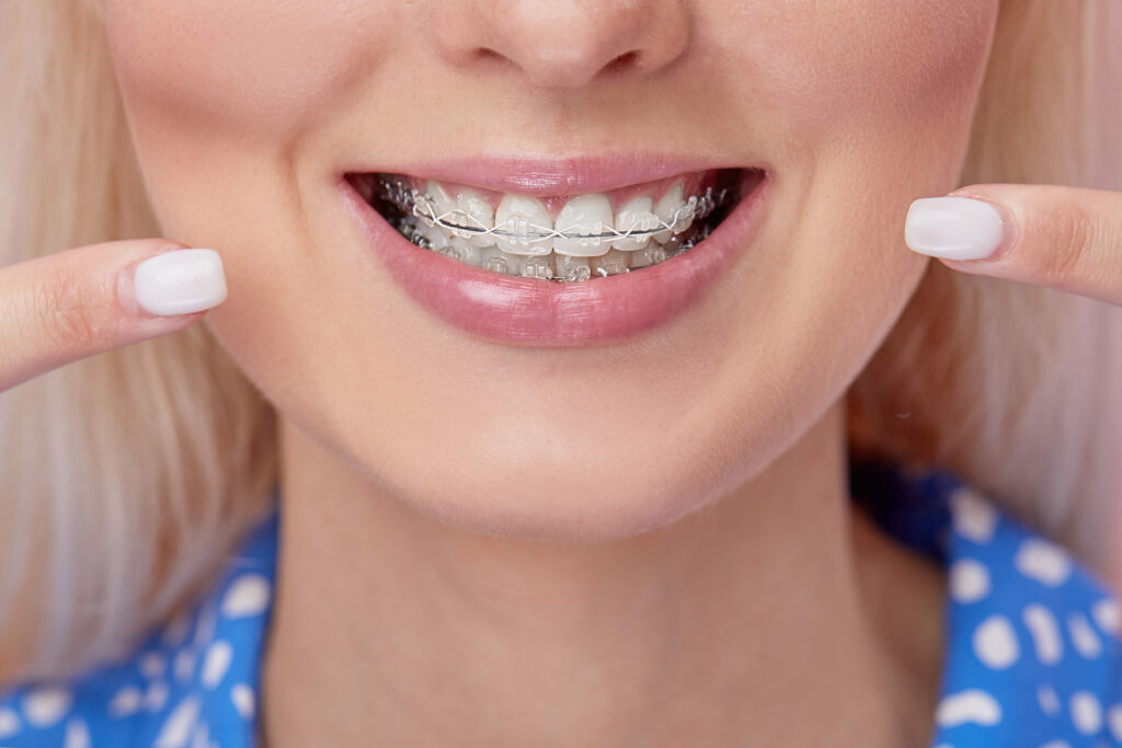 a blonde woman smiling while wearing clear bracket braces on her teeth