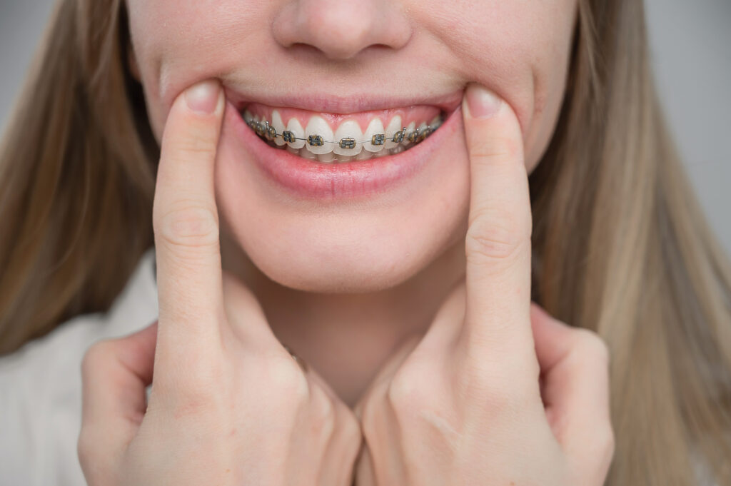 a close-up of a young woman smiling with metal braces on her teeth